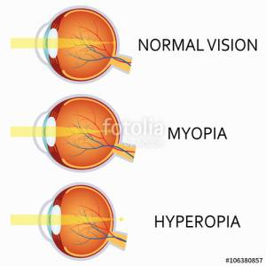Optical human eye defects. Myopia and hyperopia.