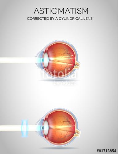 Eye vision disorders - Astigmatism